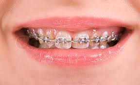 teeth-braces